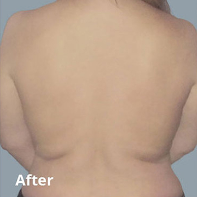 After Body Contouring Services