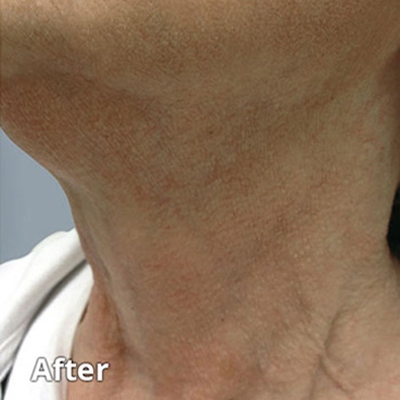 The positive effects of Skin Rejuvenation Services